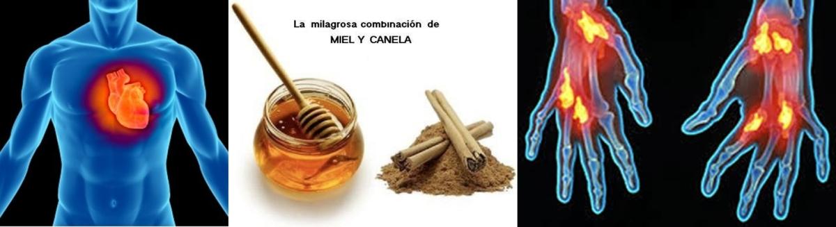 """EL SECRETO de la """"Miel de Abeja y la Canela""""... ¡Últimos descubrimientos científicos! Increíble"""